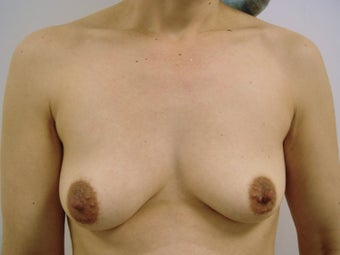 45 year old mommy after breast lift with saline implants before 1412212