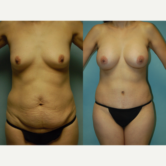 44 year old woman seven months after mommy makeover before 3260977