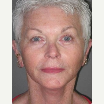 65-74 year old woman treated with SMAS Facelift