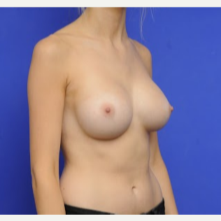 25-34 year old woman treated with Breast Augmentation after 3200438