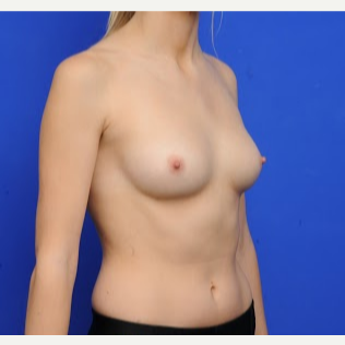 25-34 year old woman treated with Breast Augmentation before 3200438