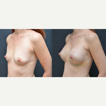 25-34 year old woman treated with Breast Augmentation before 3238767