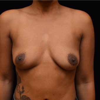 35-44 year old woman treated with Breast Augmentation before 3037210
