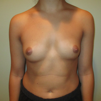 18-24 year old woman treated with Breast Augmentation before 3664676