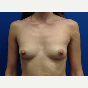 Breast Fat Transfer before 2790990