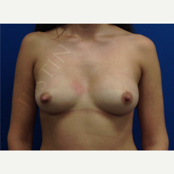 Breast Fat Transfer after 2790990