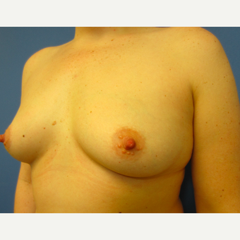 25-34 year old woman treated with Breast Augmentation before 3017035