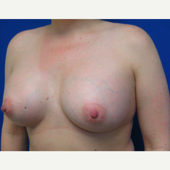 25-34 year old woman treated with Breast Augmentation after 3017035