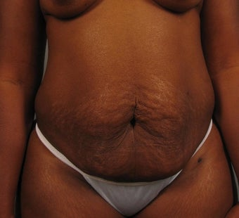 35-44 year old woman treated with Tummy Tuck before 3294011