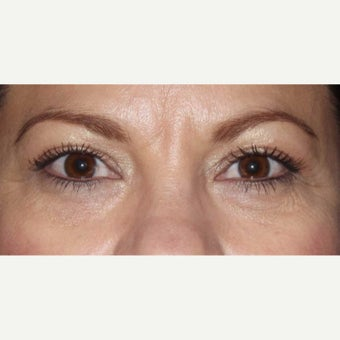 35-44 year old woman treated with Eyelid Surgery after 2030342