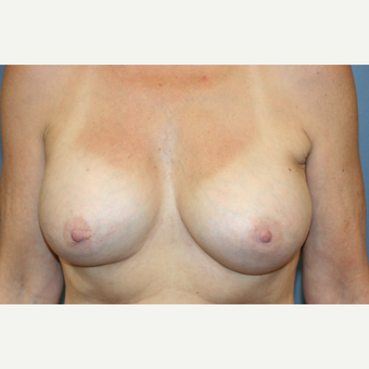 Breast Augmentation After Weight loss after 3610110