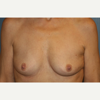 Breast Augmentation After Weight loss before 3610110