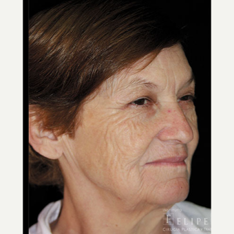55-64 year old woman treated with Chemical Peel before 3417625