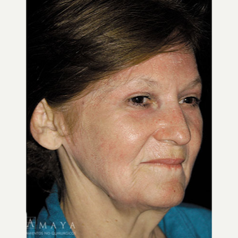 55-64 year old woman treated with Chemical Peel after 3417625