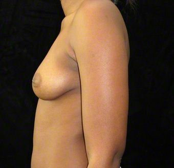 24 year old woman treated with Breast Augmentation 3103571