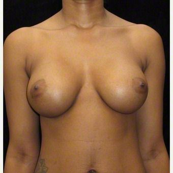 24 year old woman treated with Breast Augmentation before 3103571
