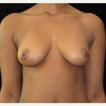 24 year old woman treated with Breast Augmentation after 3103571
