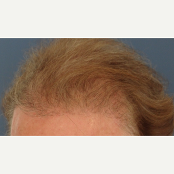 45-54 year old man treated with Hair Transplant after 3065566