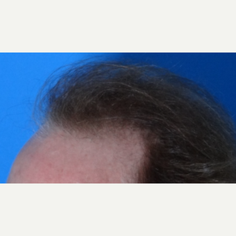 45-54 year old man treated with Hair Transplant before 3065566