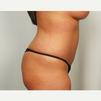 25-34 year old woman treated with Tummy Tuck after 3026088