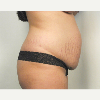 25-34 year old woman treated with Tummy Tuck before 3026088