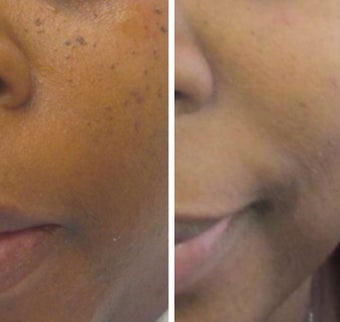 35-44 year old woman treated with Age Spots Treatment for DPNs. after 2697697