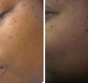 35-44 year old woman treated with Age Spots Treatment for DPNs. before 2697697