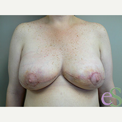 Breast Implant Revision after 3373364