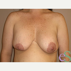 Breast Implant Revision before 3373364