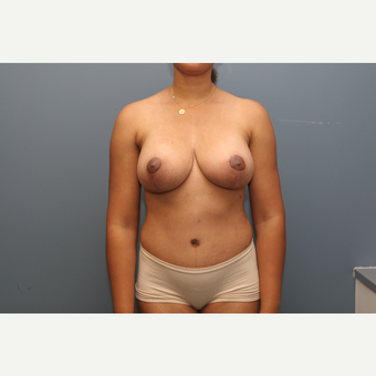 35-44 year old woman treated with Breast Lift after 3470309