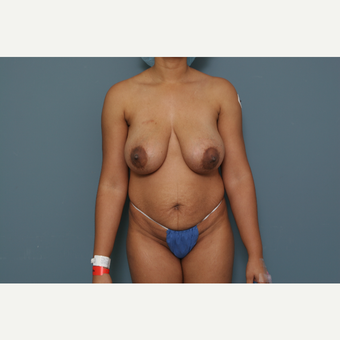 35-44 year old woman treated with Breast Lift before 3470309