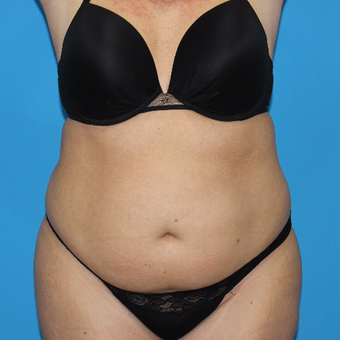 35-44 year old woman treated with Smart Lipo before 3332885
