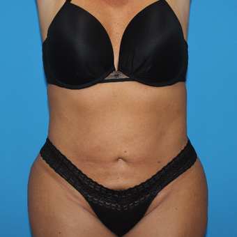 35-44 year old woman treated with Smart Lipo after 3332885