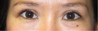 29 year old female, desires Asian eyelid surgery with parallel crease