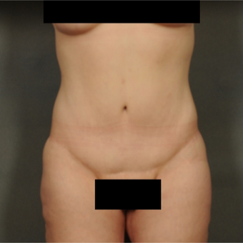 35-44 year old woman treated with Tummy Tuck after 3709681