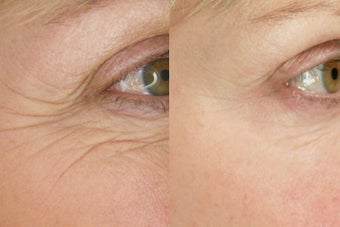 Botox for Wrinkle Treatment before 100337