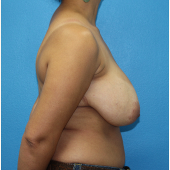 25-34 year old woman treated with Breast Reduction before 3091295