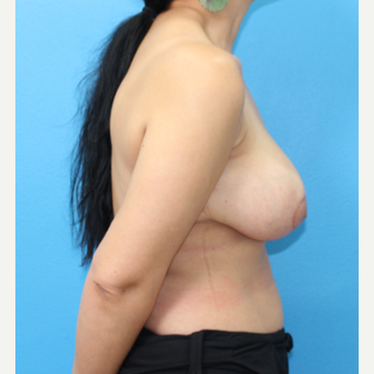 25-34 year old woman treated with Breast Reduction after 3091295