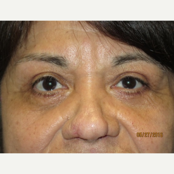 65 year old woman treated with Eyelid Surgery after 3026609