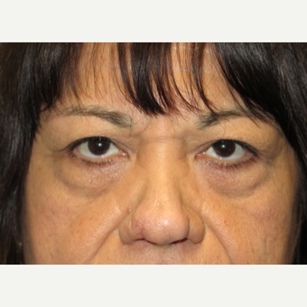 65 year old woman treated with Eyelid Surgery before 3026609