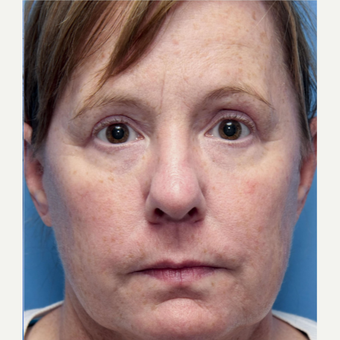 50 year old woman treated with Eyelid Surgery after 3032620