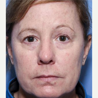 50 year old woman treated with Eyelid Surgery before 3032620