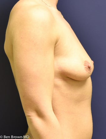 25-34 year old woman treated with Breast Augmentation 2706149
