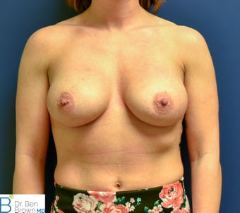 25-34 year old woman treated with Breast Augmentation after 2706149