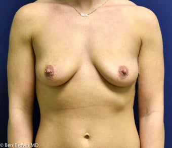 25-34 year old woman treated with Breast Augmentation before 2706149