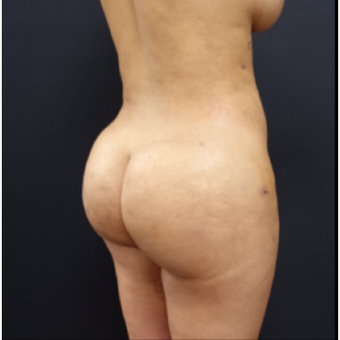 25-34 year old woman treated with Liposuction after 3267153