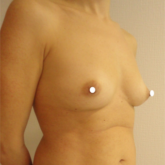 25-34 year old woman treated with Breast Augmentation before 3575009