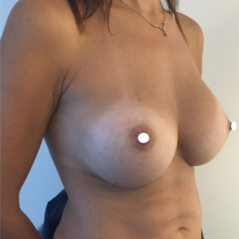 25-34 year old woman treated with Breast Augmentation after 3575009