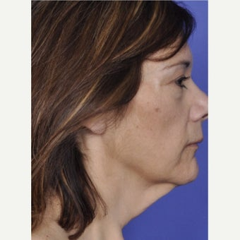45-54 year old woman treated with Neck Lift before 2550765