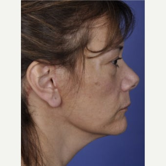 45-54 year old woman treated with Neck Lift after 2550765